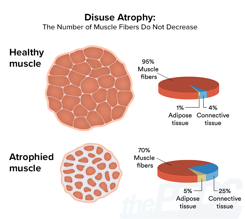 disuse-atrophy-muscle-fibers