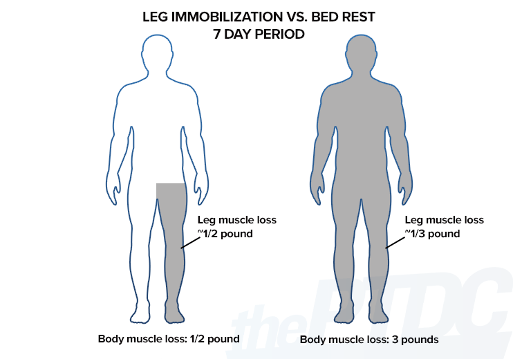 leg-immobilization-vs-bed-rest-muscle-loss
